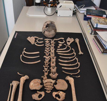 Lo scheletro di un bambino di 8 anni trovato a Pompei durante un restauro, lo studio fondamentale per ricostruire la composizione e lo stato di salute degli abitanti di Pompei nel 79 d.C
