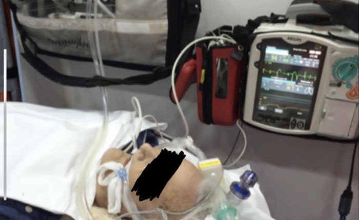 EMERGENZA CORONAVIRUS – Alle Asl della Campania distribuiti 10 ventilatori polmonari