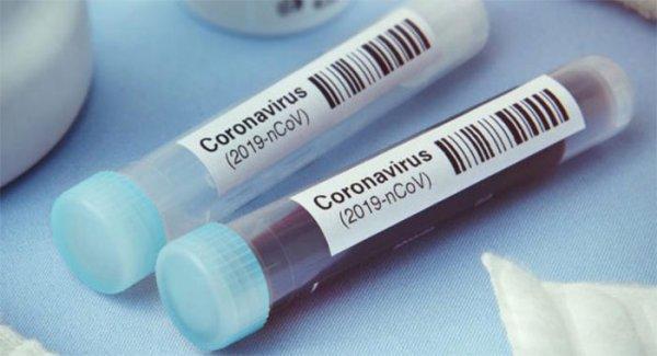 Coronavirus in Campania, altri 662 positivi su 7.405 tamponi