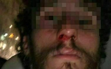 Napoli: due denunciati per l'aggressione omofoba dello scorso weekend a piazza Bellini