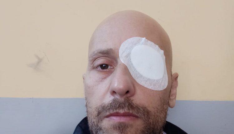 Napoli, commercianti di San Biagio dei Librai ostaggio della violenza di due abusivi. Gioielliere aggredito finisce in ospedale, bagno con la candeggina al suo cane